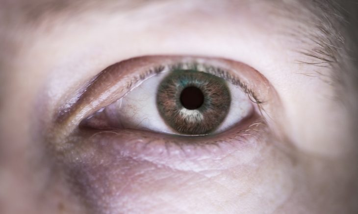 eye bags b